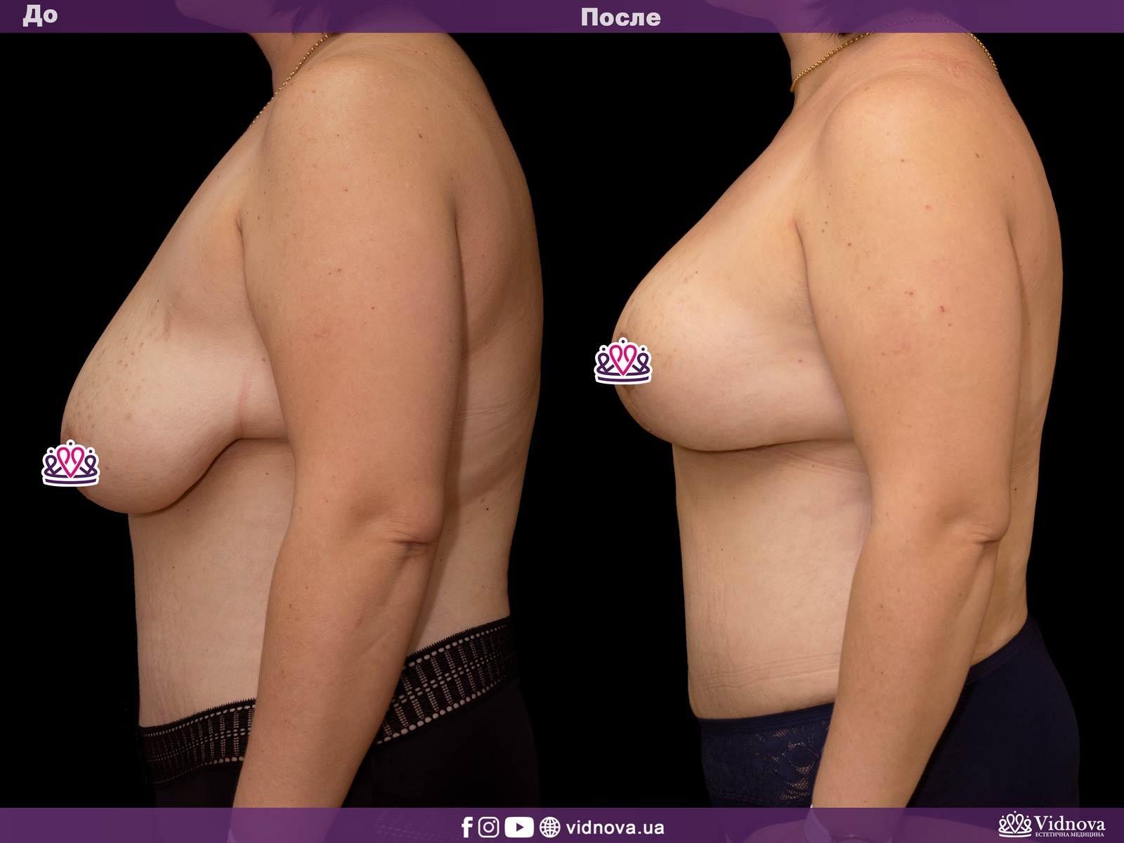 Подтяжка груди: Фото ДО и ПОСЛЕ - Пример №18-3 - Клиника Vidnova