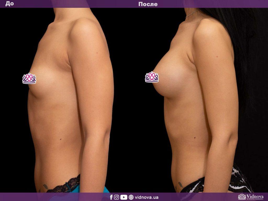 Увеличение груди до или после родов: решаем диллему 3v 14 1024x768 - клиника VIdnova
