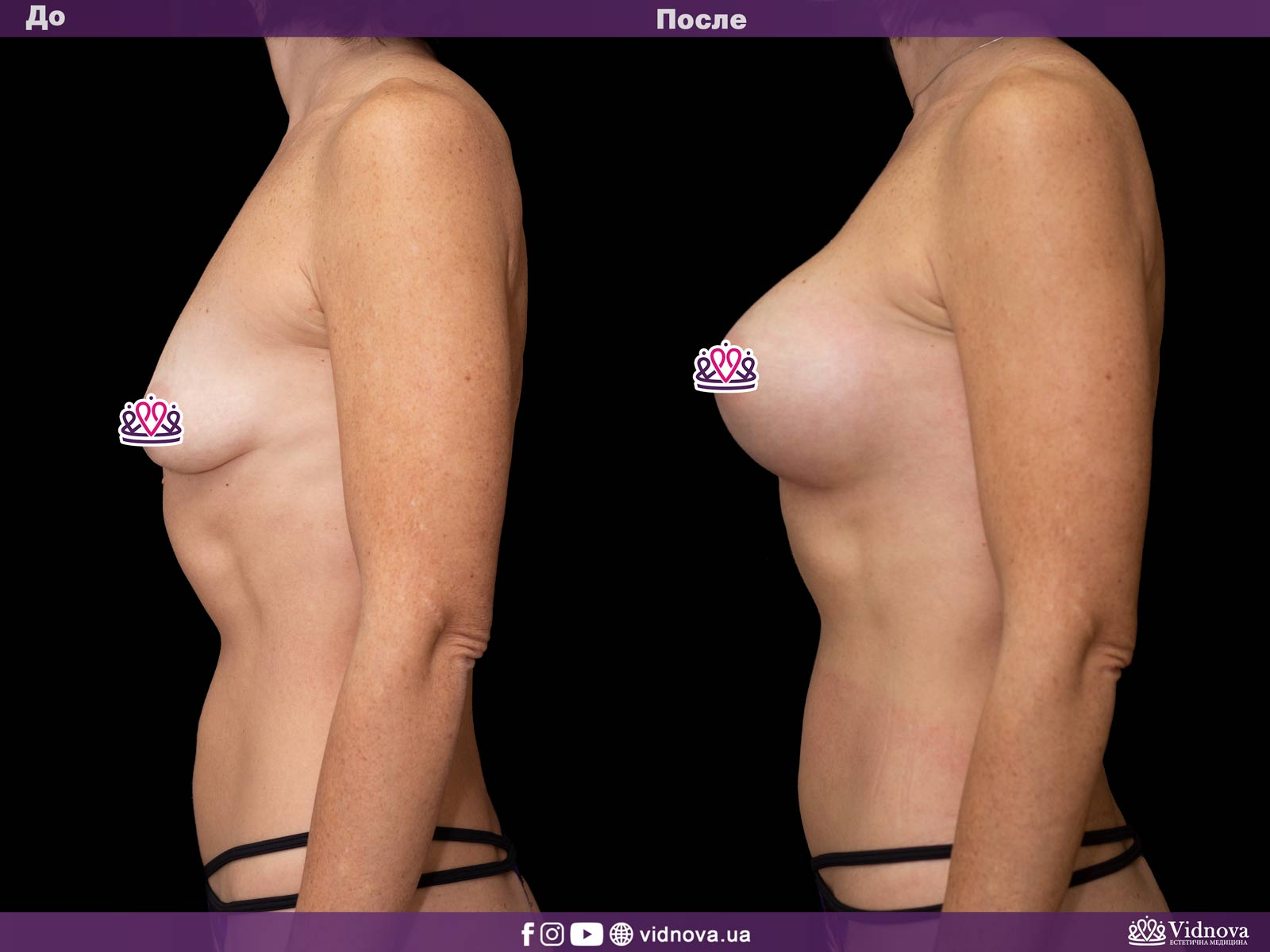 Увеличение груди: Фото ДО и ПОСЛЕ - Пример №32-3 - Клиника Vidnova