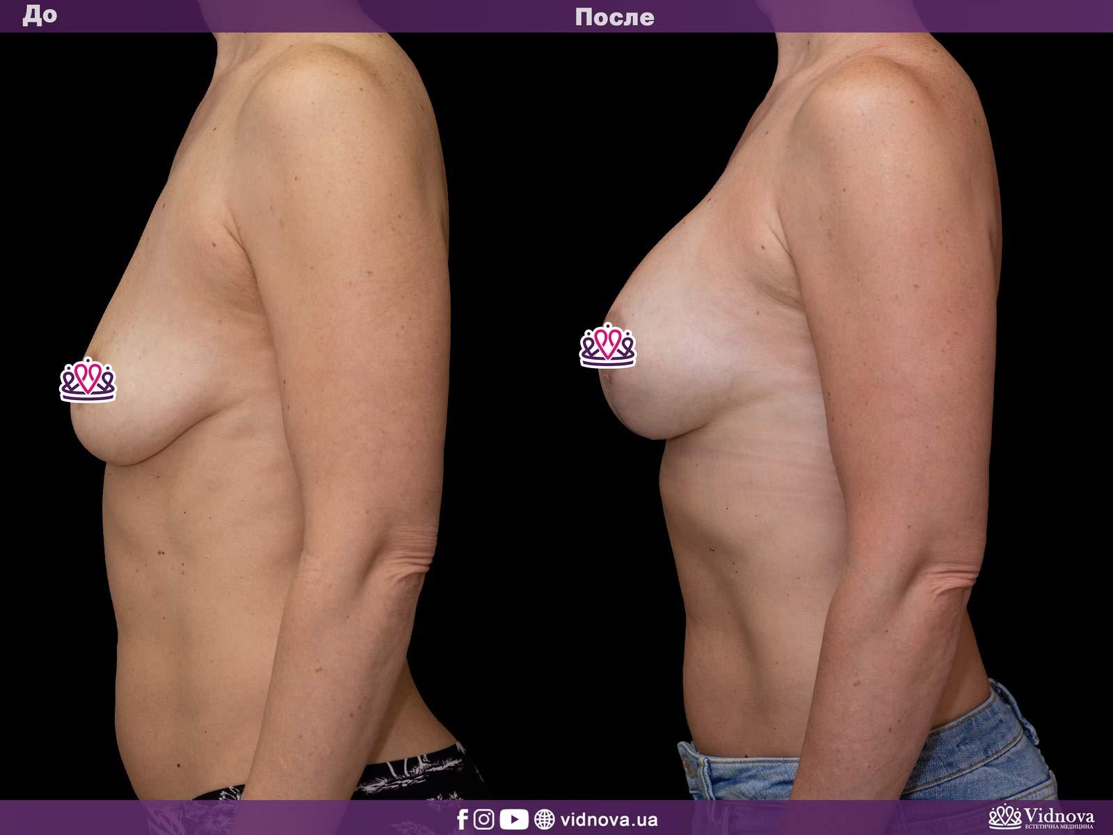 Подтяжка груди: Фото ДО и ПОСЛЕ - Пример №7-3 - Клиника Vidnova