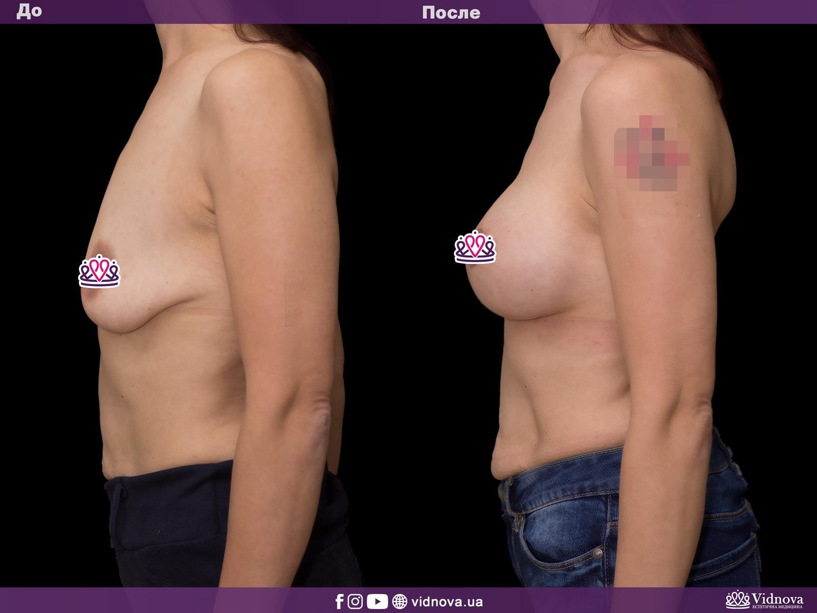Подтяжка груди: Фото ДО и ПОСЛЕ - Пример №16-3 - Клиника Vidnova