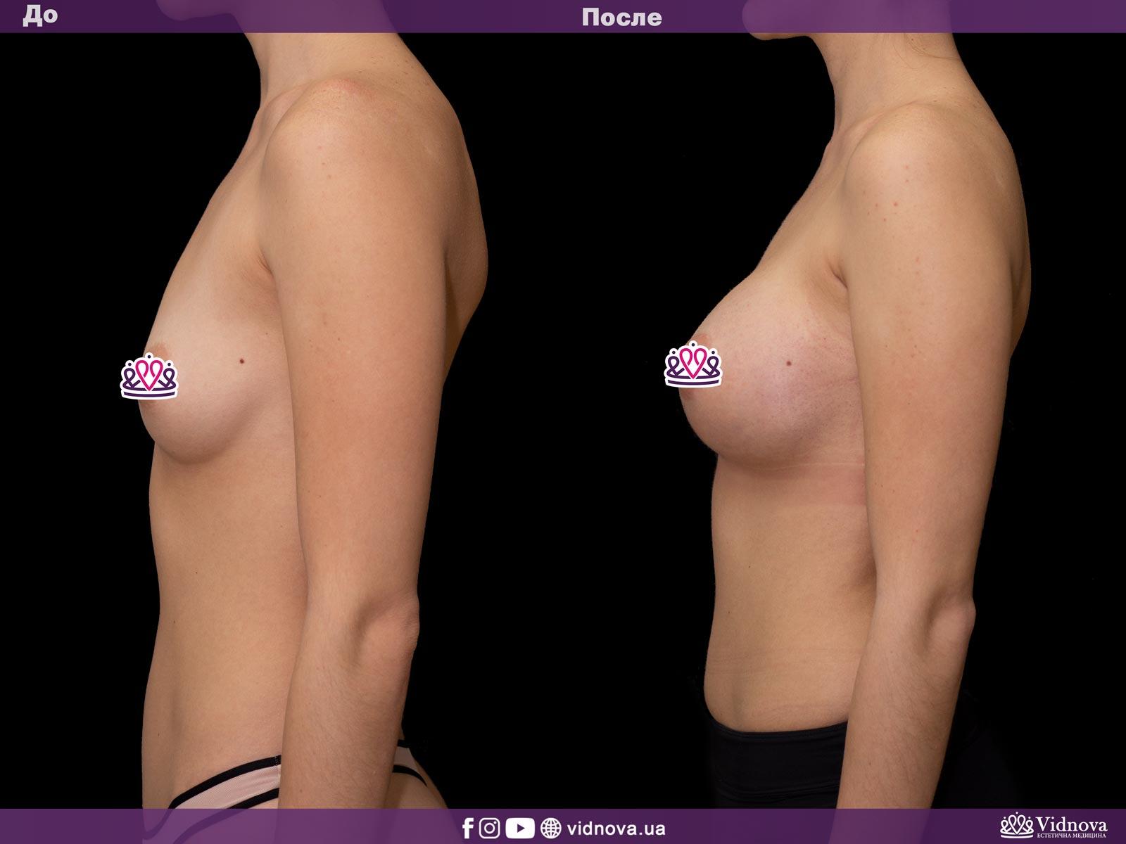 Увеличение груди: Фото ДО и ПОСЛЕ - Пример №31-3 - Клиника Vidnova