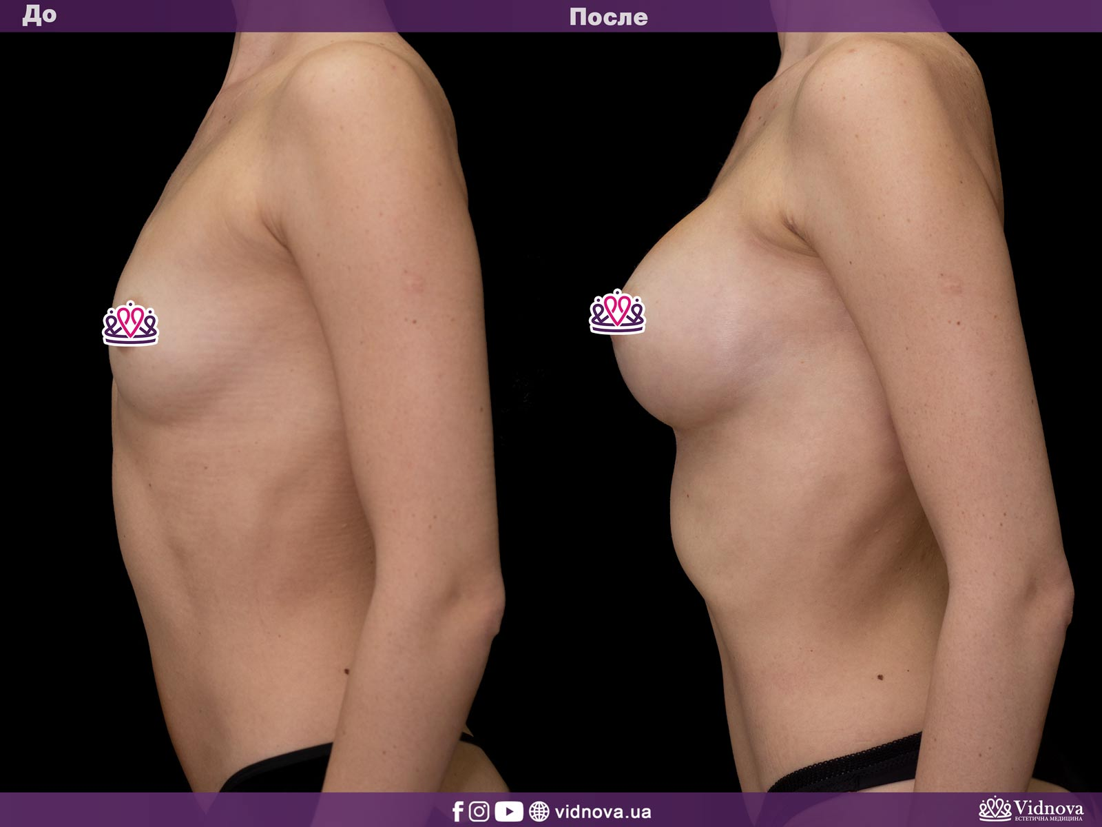 Увеличение груди: Фото ДО и ПОСЛЕ - Пример №28-3 - Клиника Vidnova