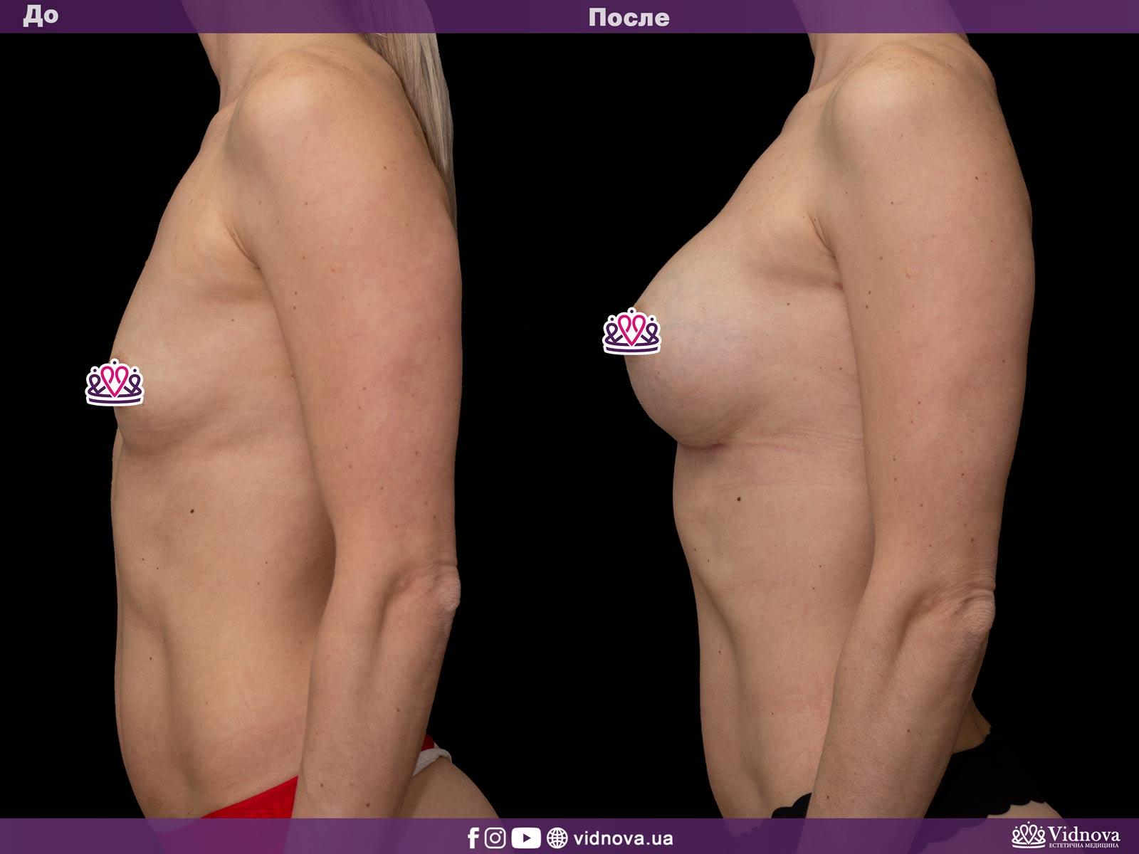 Увеличение груди: Фото ДО и ПОСЛЕ - Пример №16-3 - Клиника Vidnova