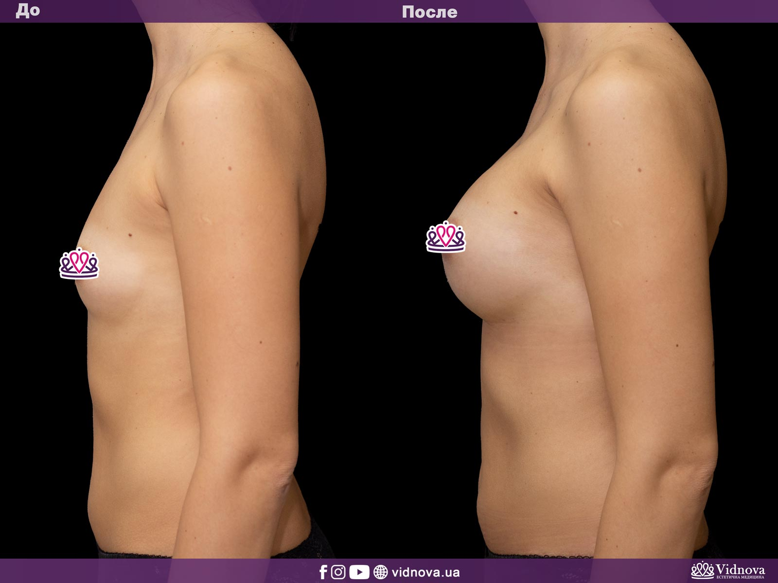 Увеличение груди: Фото ДО и ПОСЛЕ - Пример №21-3 - Клиника Vidnova