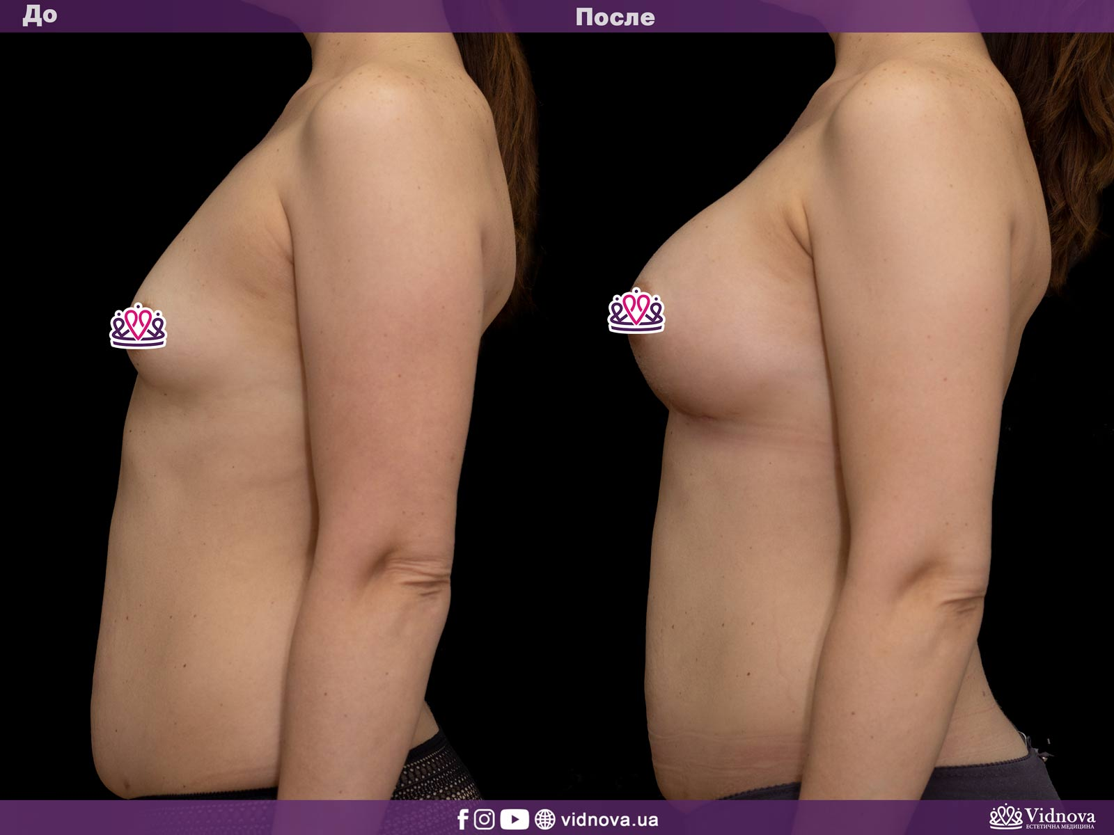 Увеличение груди: Фото ДО и ПОСЛЕ - Пример №23-3 - Клиника Vidnova