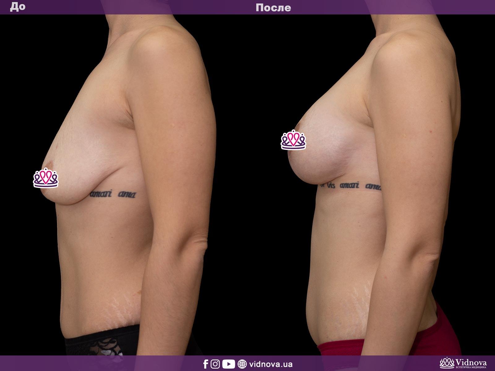 Подтяжка груди: Фото ДО и ПОСЛЕ - Пример №14-3 - Клиника Vidnova