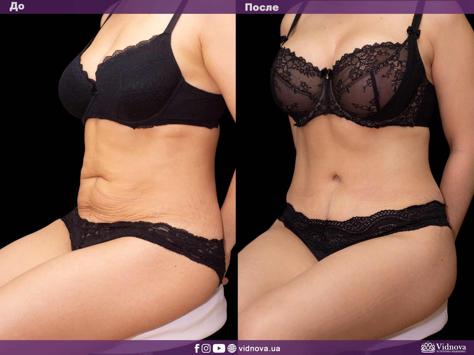 Совмещенные операции: Фото До и После - Пример №3-1 - Клиника Vidnova