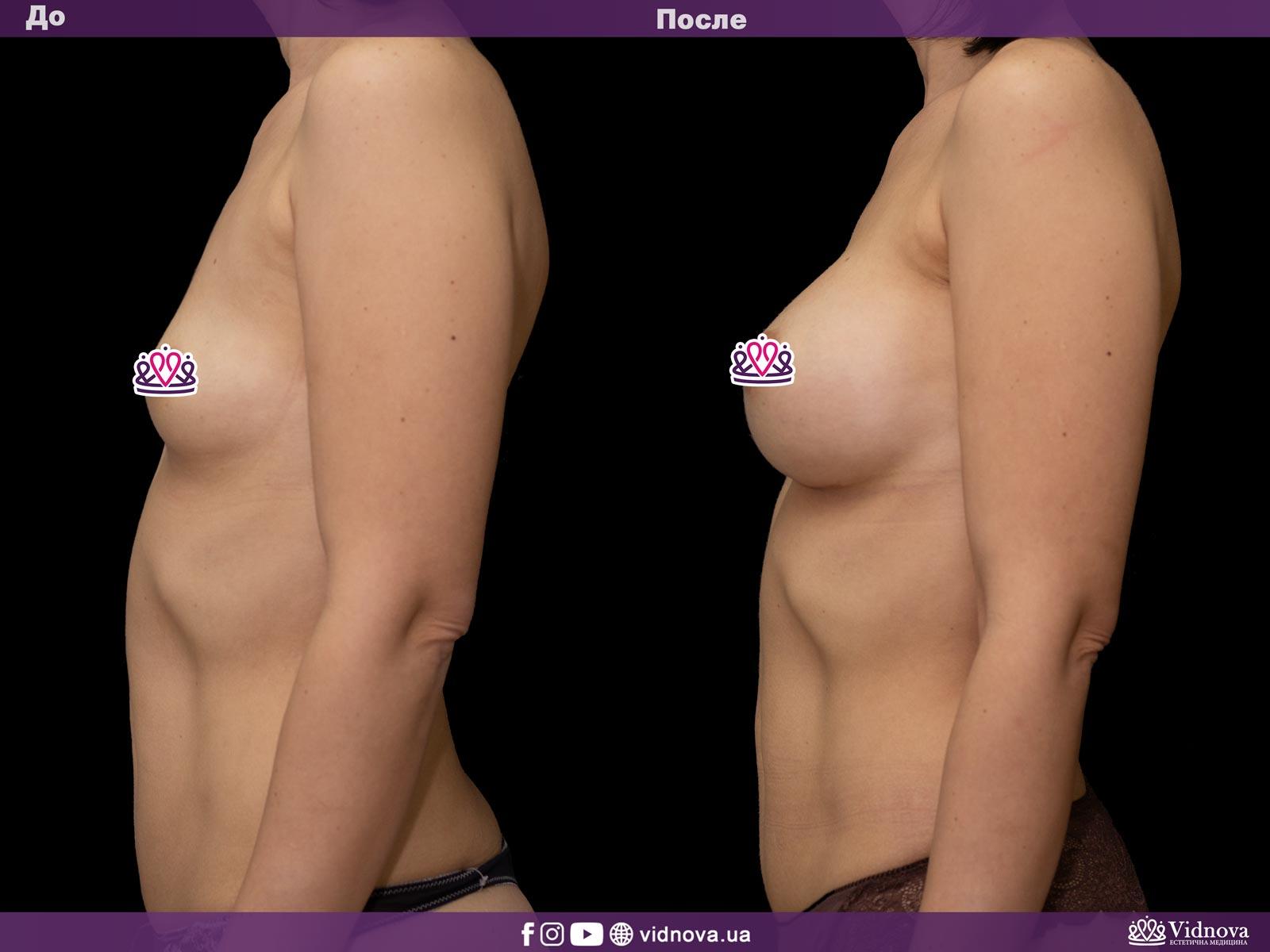 Увеличение груди: Фото ДО и ПОСЛЕ - Пример №15-3 - Клиника Vidnova