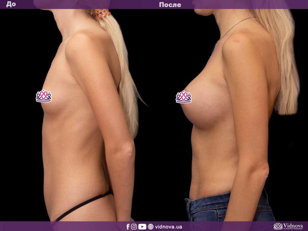 Увеличение груди до или после родов: решаем диллему 3v 3 1024x768 - клиника VIdnova