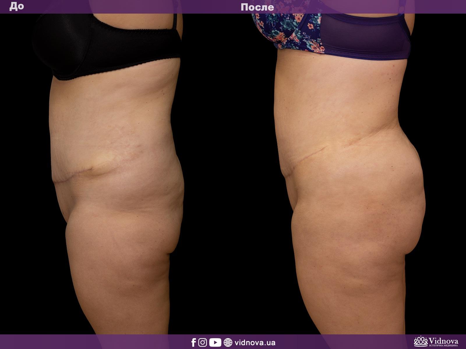 Липоскульптурирование: Фото До и После - Пример №1-3 - Клиника Vidnova