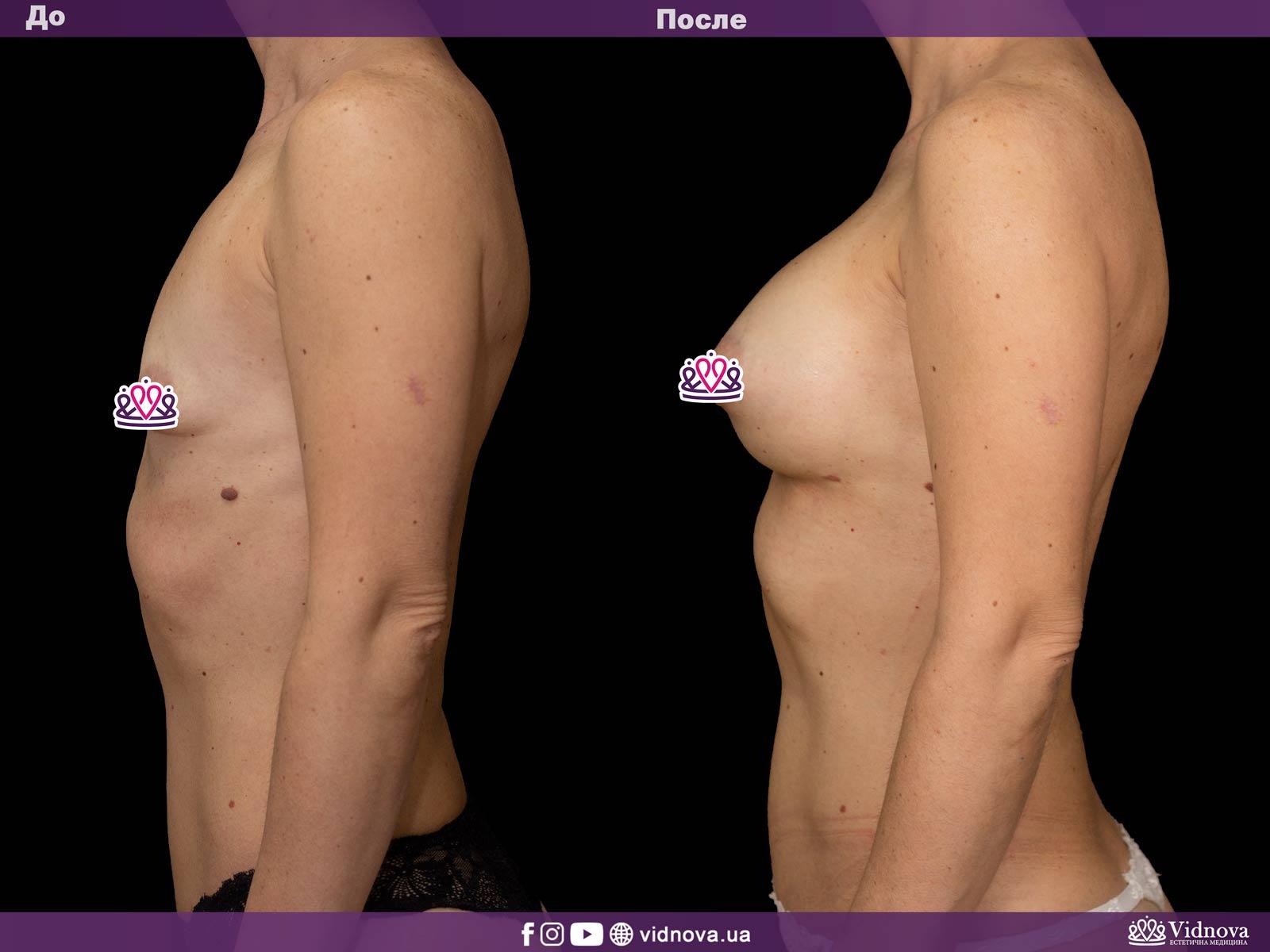Увеличение груди: Фото ДО и ПОСЛЕ - Пример №26-3 - Клиника Vidnova