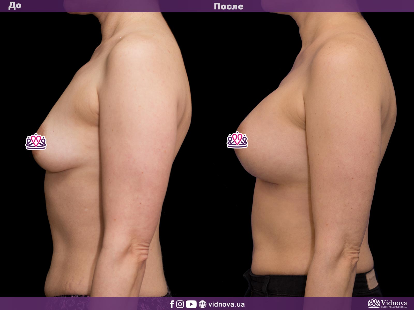 Увеличение груди: Фото ДО и ПОСЛЕ - Пример №36-3 - Клиника Vidnova