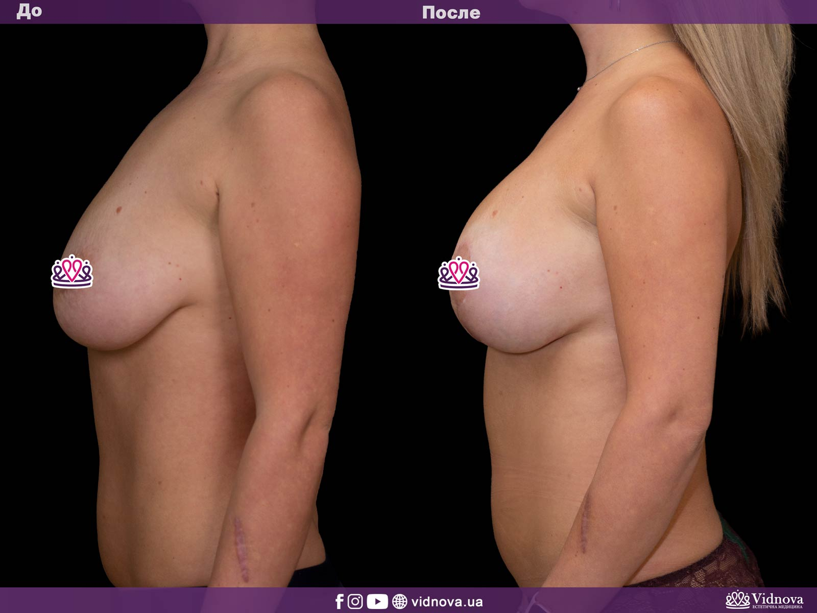 Подтяжка груди: Фото ДО и ПОСЛЕ - Пример №6-3 - Клиника Vidnova