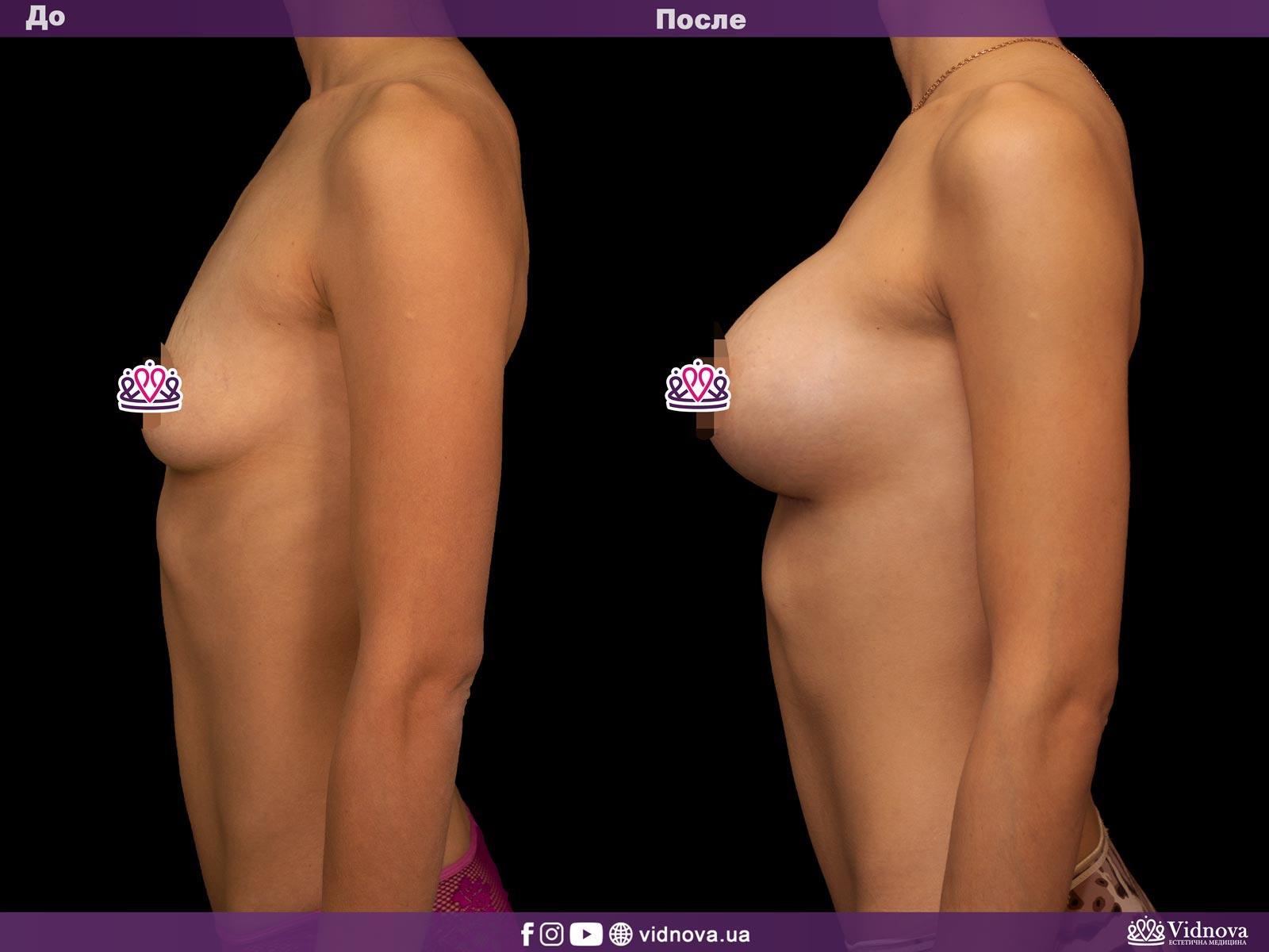 Увеличение груди: Фото ДО и ПОСЛЕ - Пример №19-3 - Клиника Vidnova