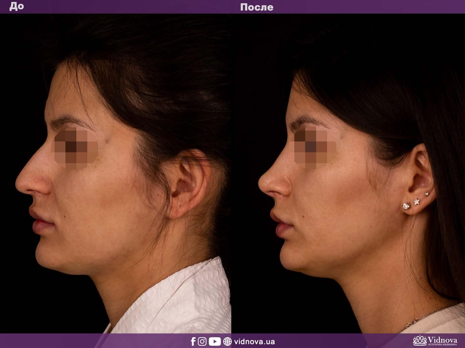 Ринопластика: Фото ДО и ПОСЛЕ - Пример №2-3 - Клиника Vidnova