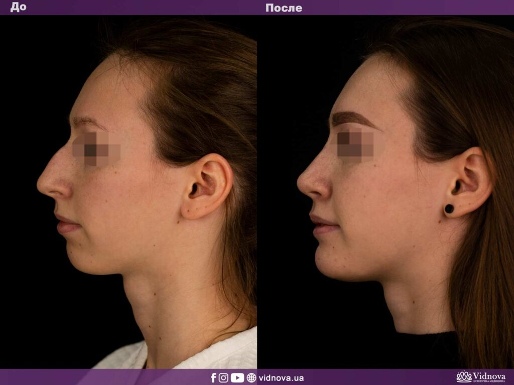 Ринопластика и эндопротезирование подбородка (ментопластика) фото до и после
