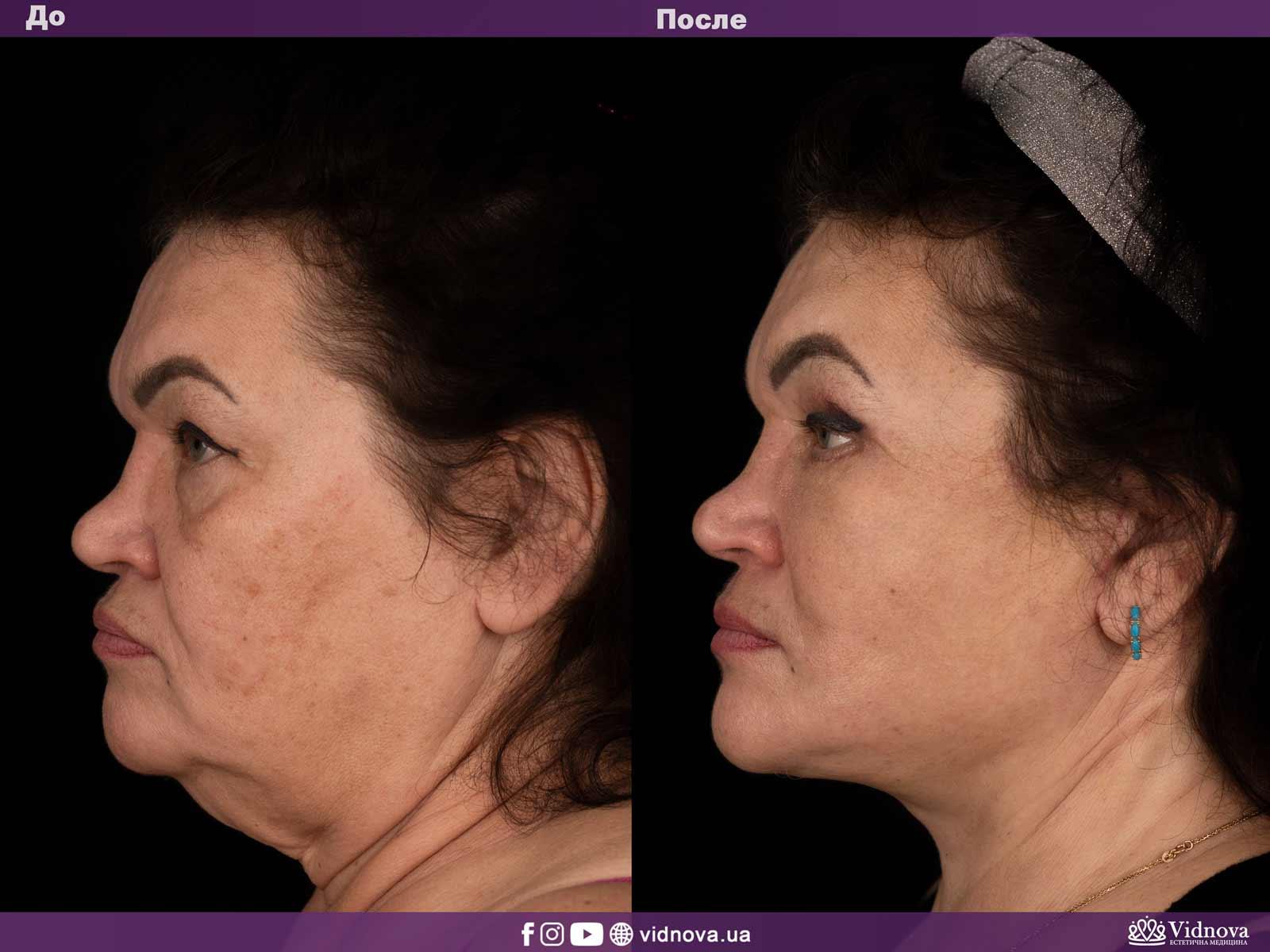 Подтяжка лица и шеи: Фото ДО и ПОСЛЕ - Пример №1-3 - Клиника Vidnova
