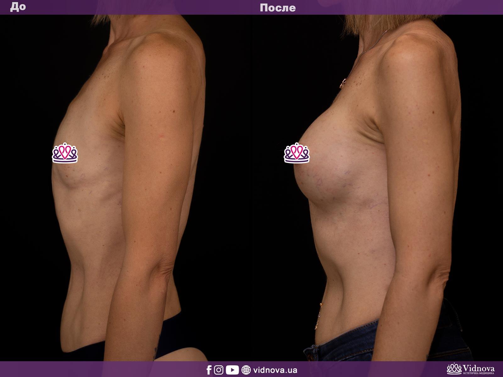 Увеличение груди: Фото ДО и ПОСЛЕ - Пример №14-3 - Клиника Vidnova