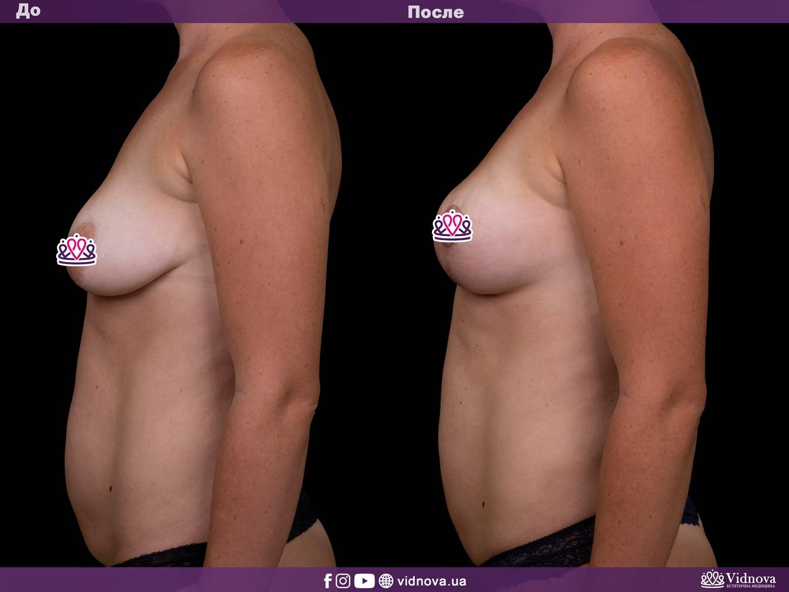 Подтяжка груди: Фото ДО и ПОСЛЕ - Пример №12-3 - Клиника Vidnova