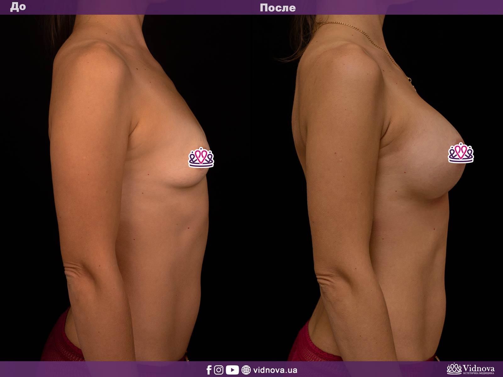 Увеличение груди: Фото ДО и ПОСЛЕ - Пример №11-3 - Клиника Vidnova