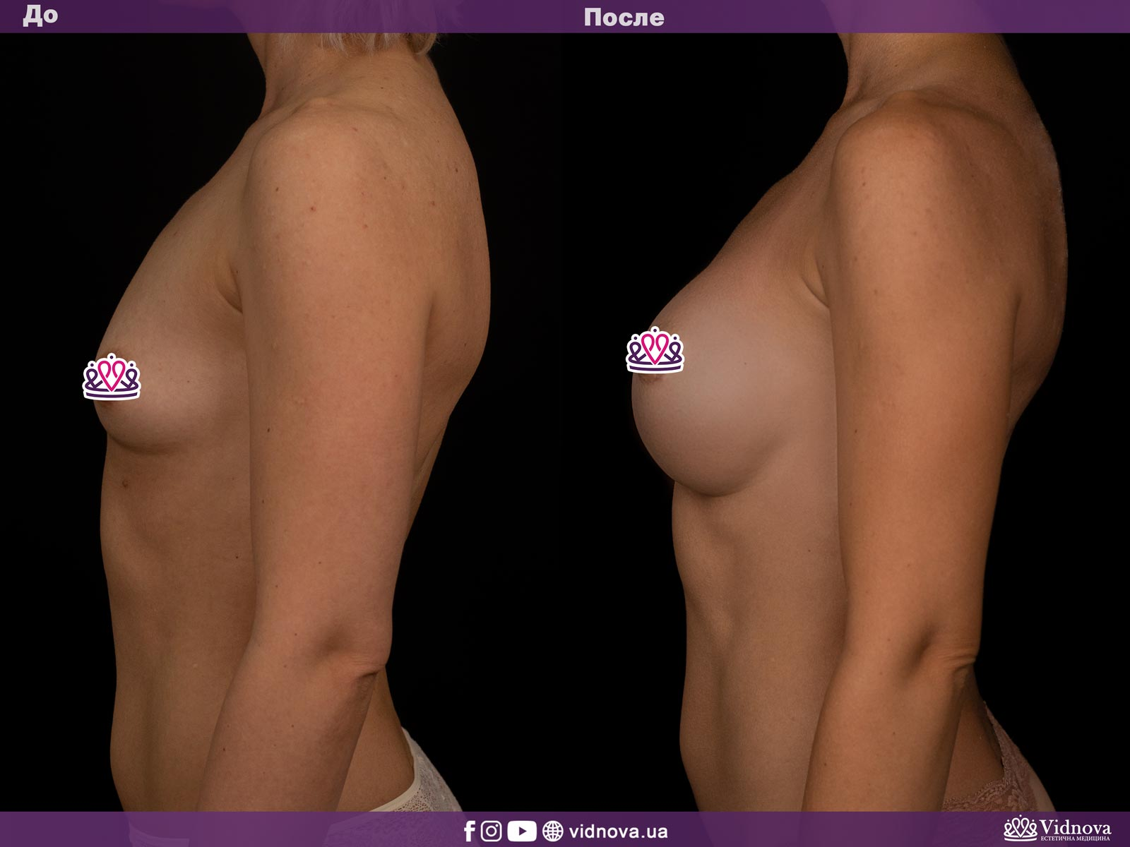 Увеличение груди: Фото ДО и ПОСЛЕ - Пример №8-3 - Клиника Vidnova