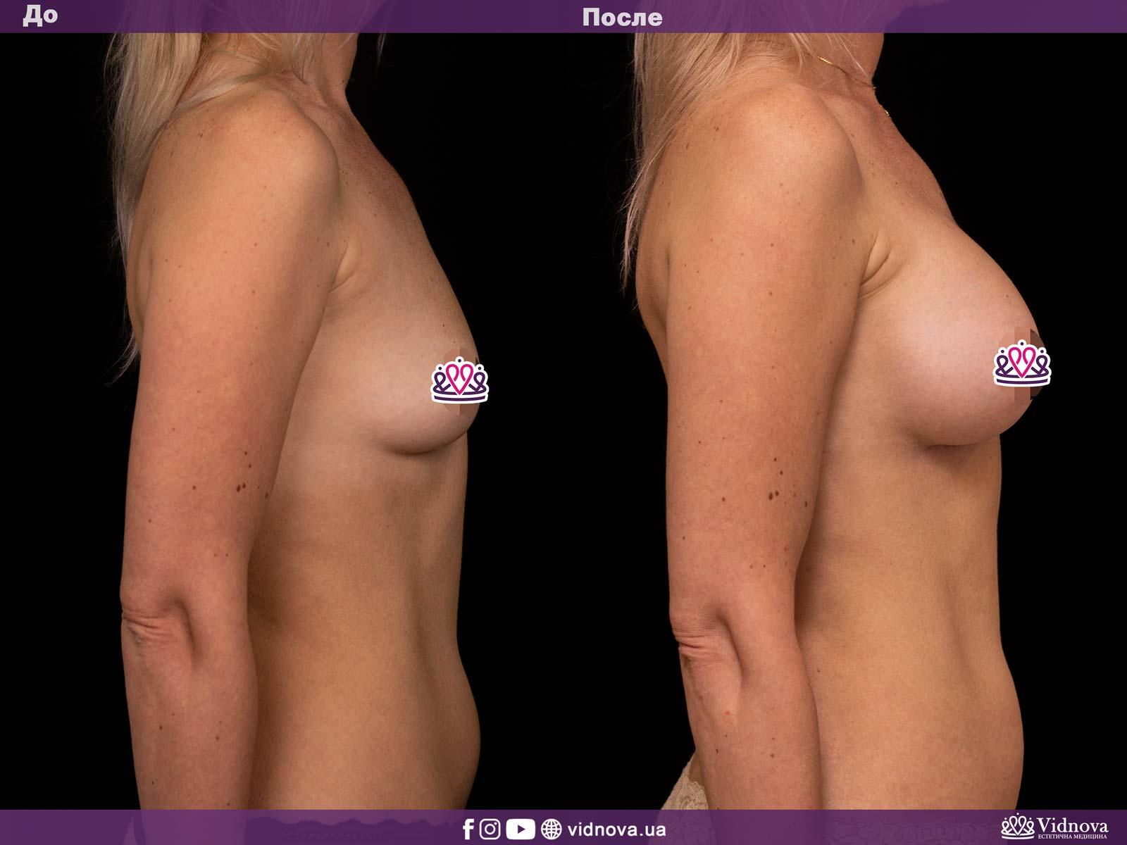 Увеличение груди: Фото ДО и ПОСЛЕ - Пример №6-3 - Клиника Vidnova