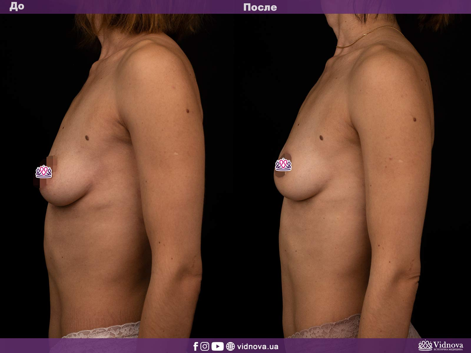 Подтяжка груди: Фото ДО и ПОСЛЕ - Пример №9-3 - Клиника Vidnova