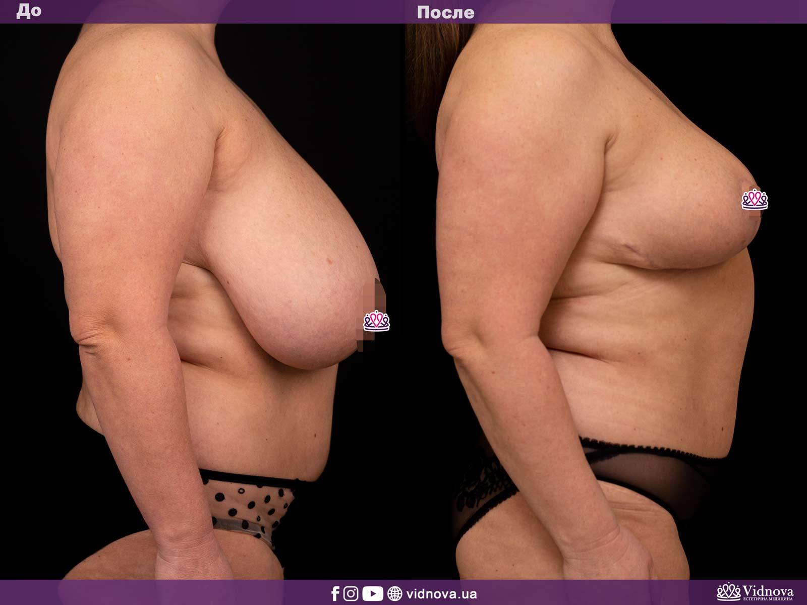 Уменьшение груди: Фото ДО и ПОСЛЕ - Пример №2-3 - Клиника Vidnova