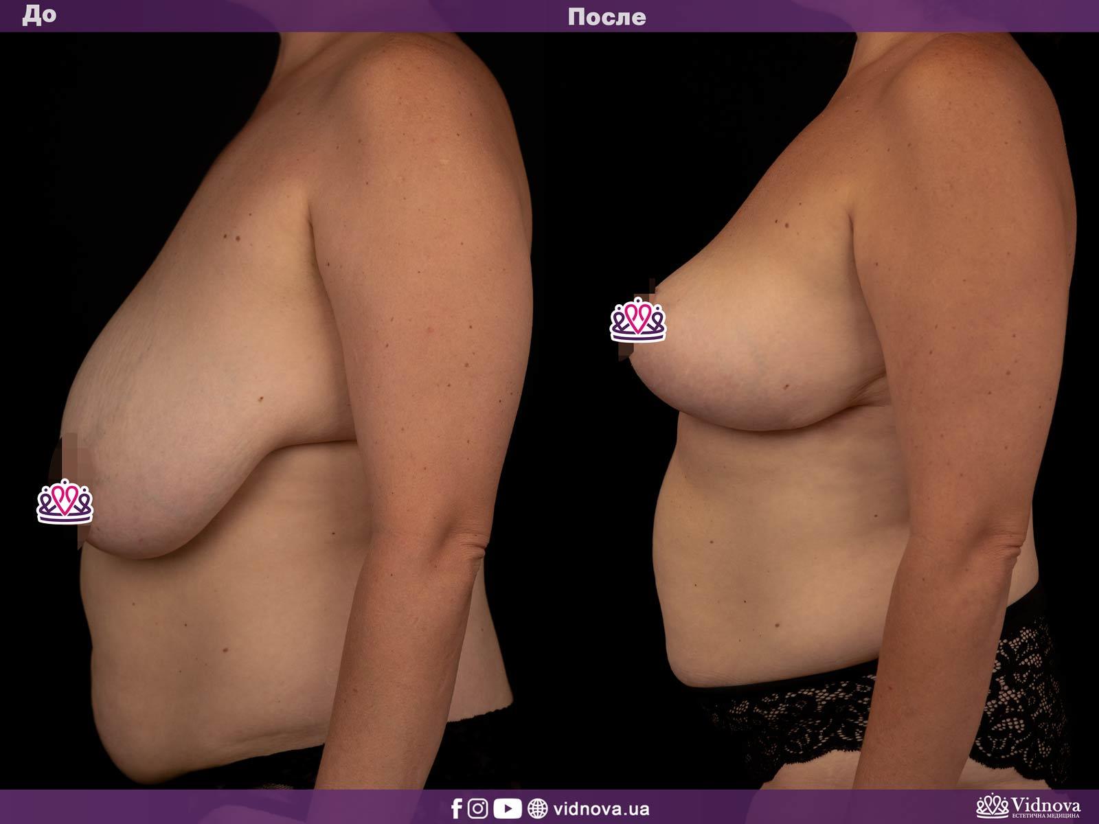 Уменьшение груди: Фото ДО и ПОСЛЕ - Пример №1-3 - Клиника Vidnova