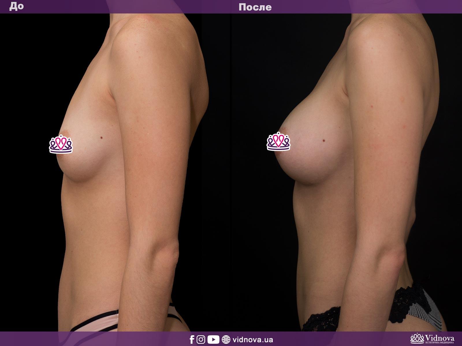 Увеличение груди: Фото ДО и ПОСЛЕ - Пример №3-3 - Клиника Vidnova