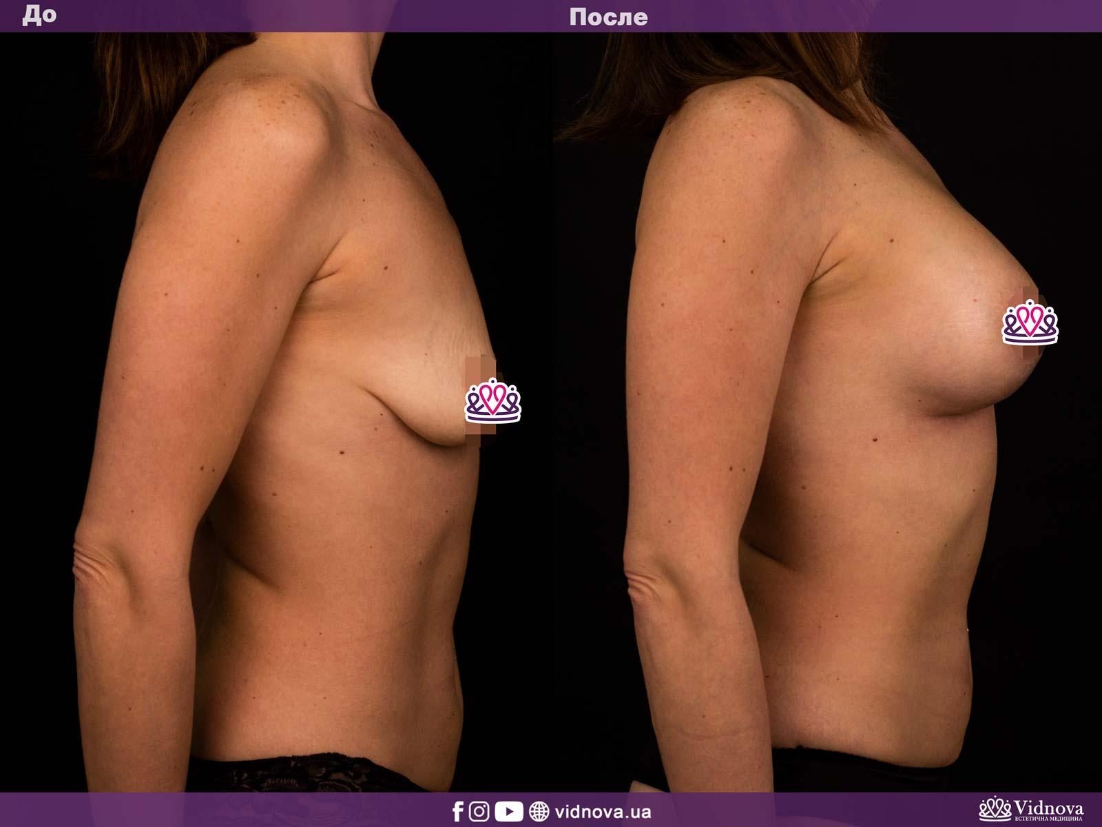 Подтяжка груди: Фото ДО и ПОСЛЕ - Пример №3-3 - Клиника Vidnova