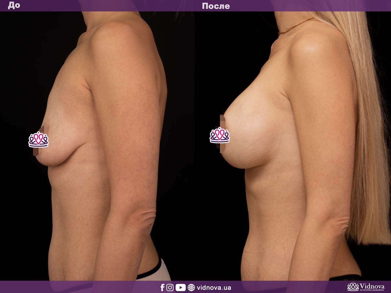 Подтяжка груди: Фото ДО и ПОСЛЕ - Пример №2-3 - Клиника Vidnova