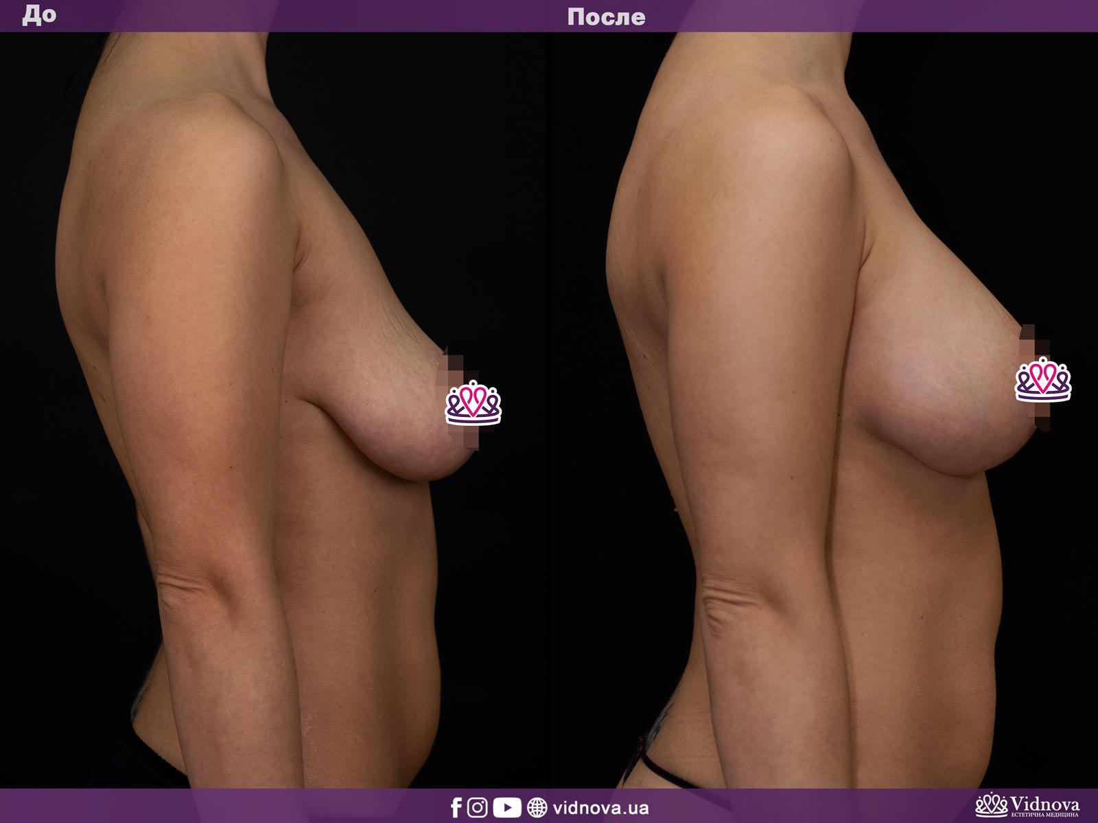 Подтяжка груди: Фото ДО и ПОСЛЕ - Пример №1-3 - Клиника Vidnova