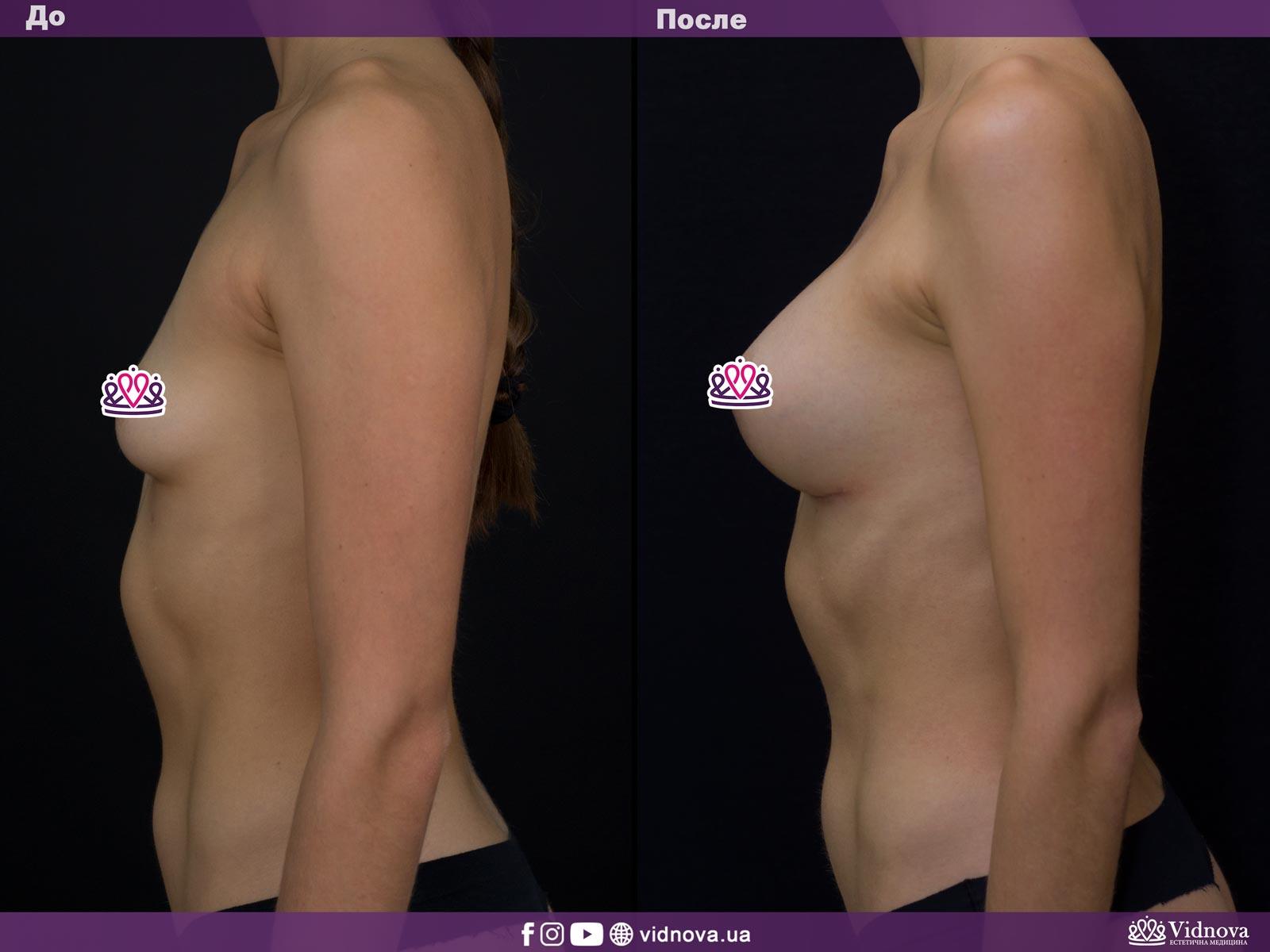 Увеличение груди: Фото ДО и ПОСЛЕ - Пример №2-3 - Клиника Vidnova