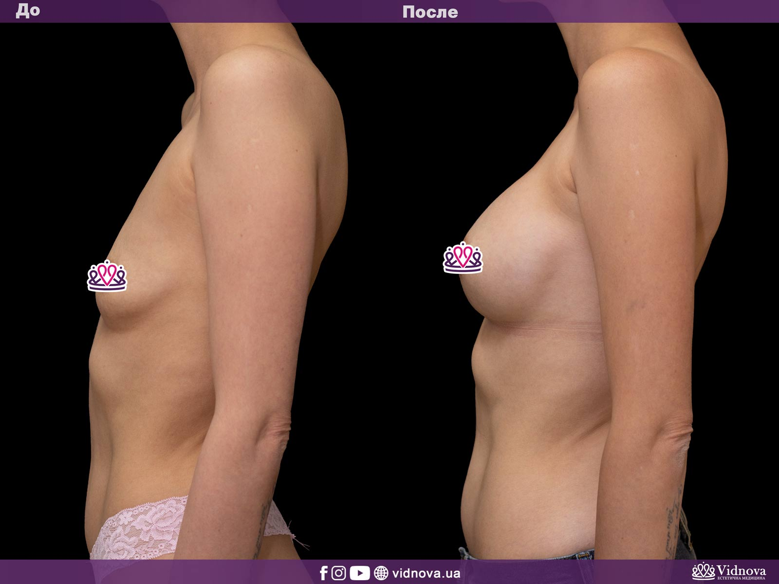 Увеличение груди: Фото ДО и ПОСЛЕ - Пример №25-3 - Клиника Vidnova