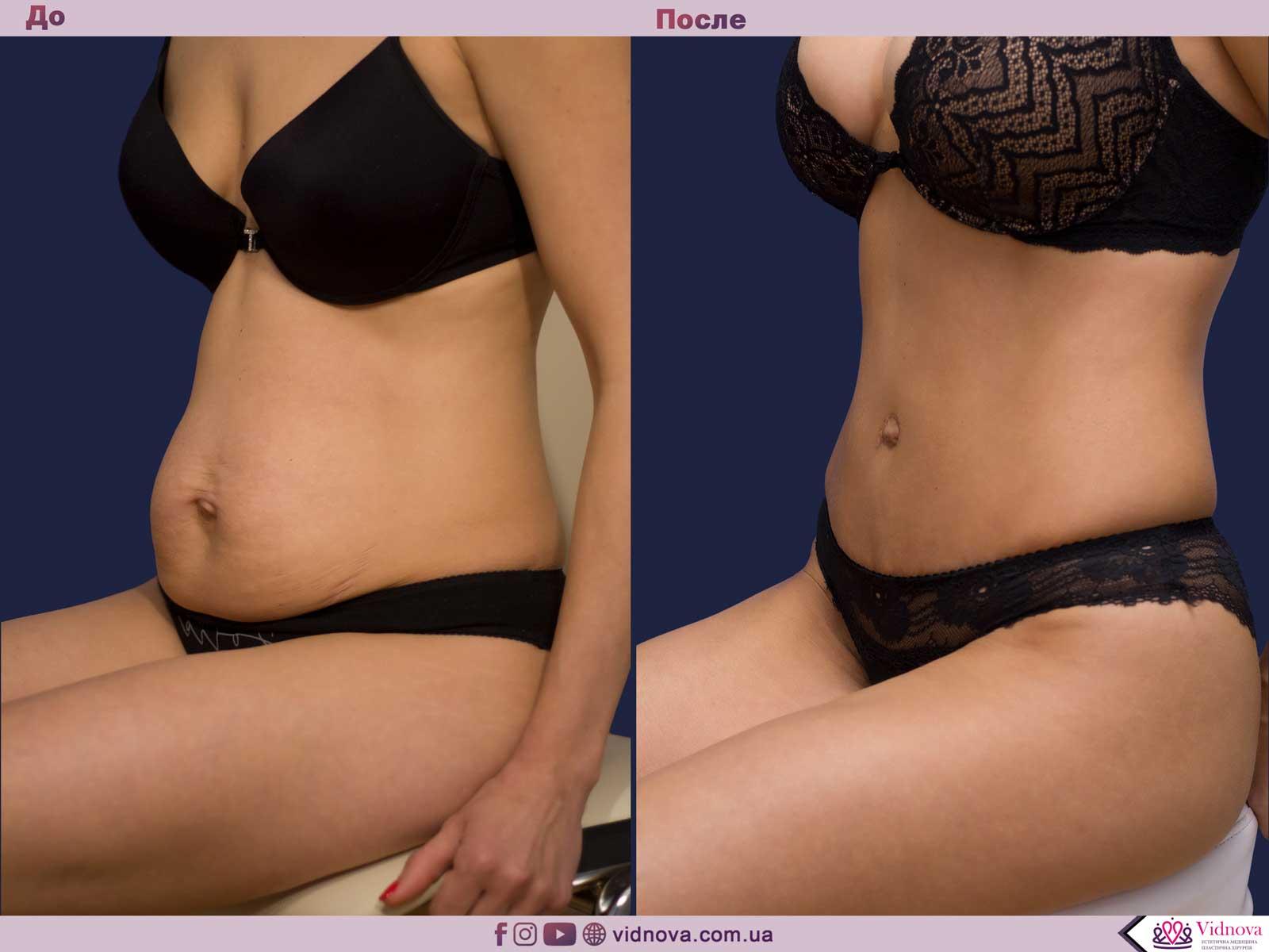 Совмещенные операции: Фото До и После - Пример №10-1 - Клиника Vidnova