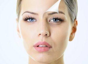 """Как и почему появляются морщины? Топ-7 причин преждевременного """"старения"""" кожи. 4 1 300x220 - клиника VIdnova"""