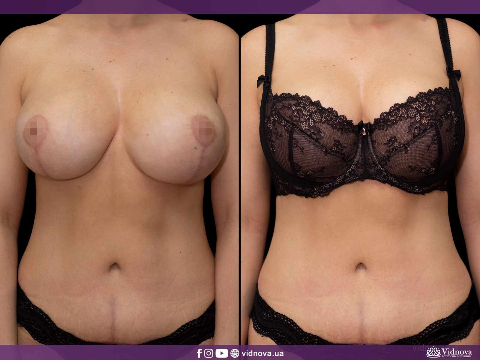 Подтяжка груди: Фото ДО и ПОСЛЕ - Пример №10-1 - Клиника Vidnova