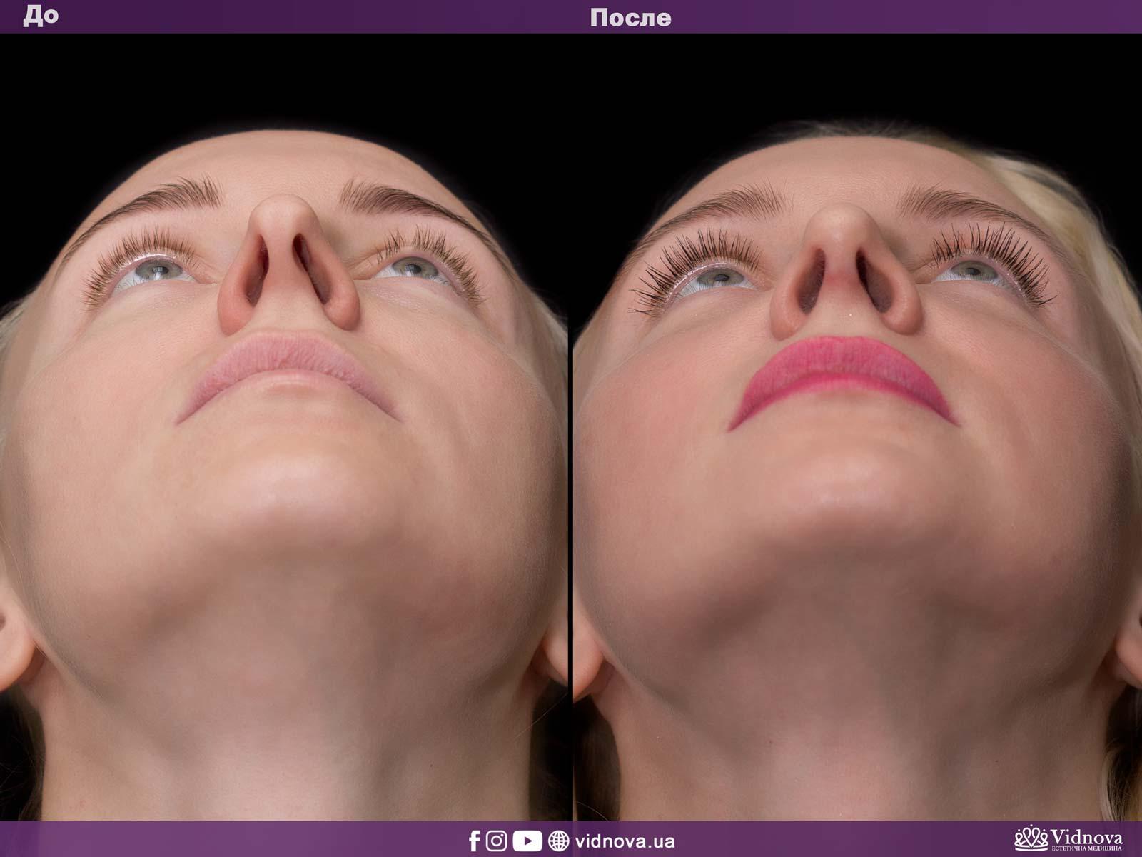 Ринопластика: Фото ДО и ПОСЛЕ - Пример №5-4 - Клиника Vidnova