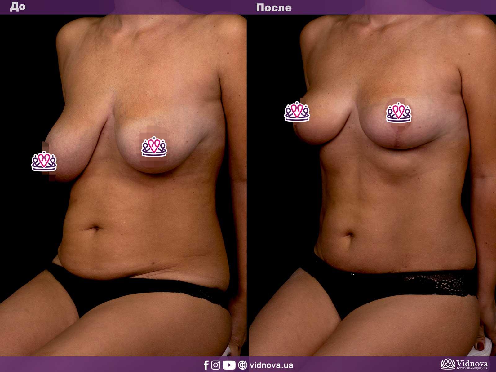 Подтяжка груди: Фото ДО и ПОСЛЕ - Пример №2-1 - Клиника Vidnova