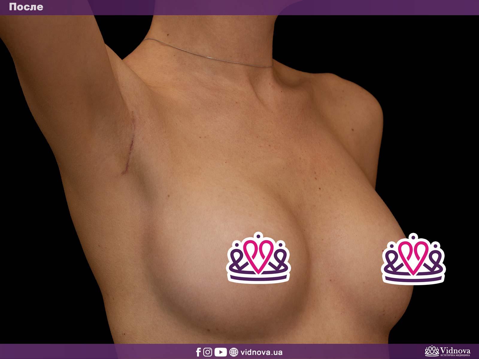 Увеличение груди: Фото ДО и ПОСЛЕ - Пример №9-4 - Клиника Vidnova