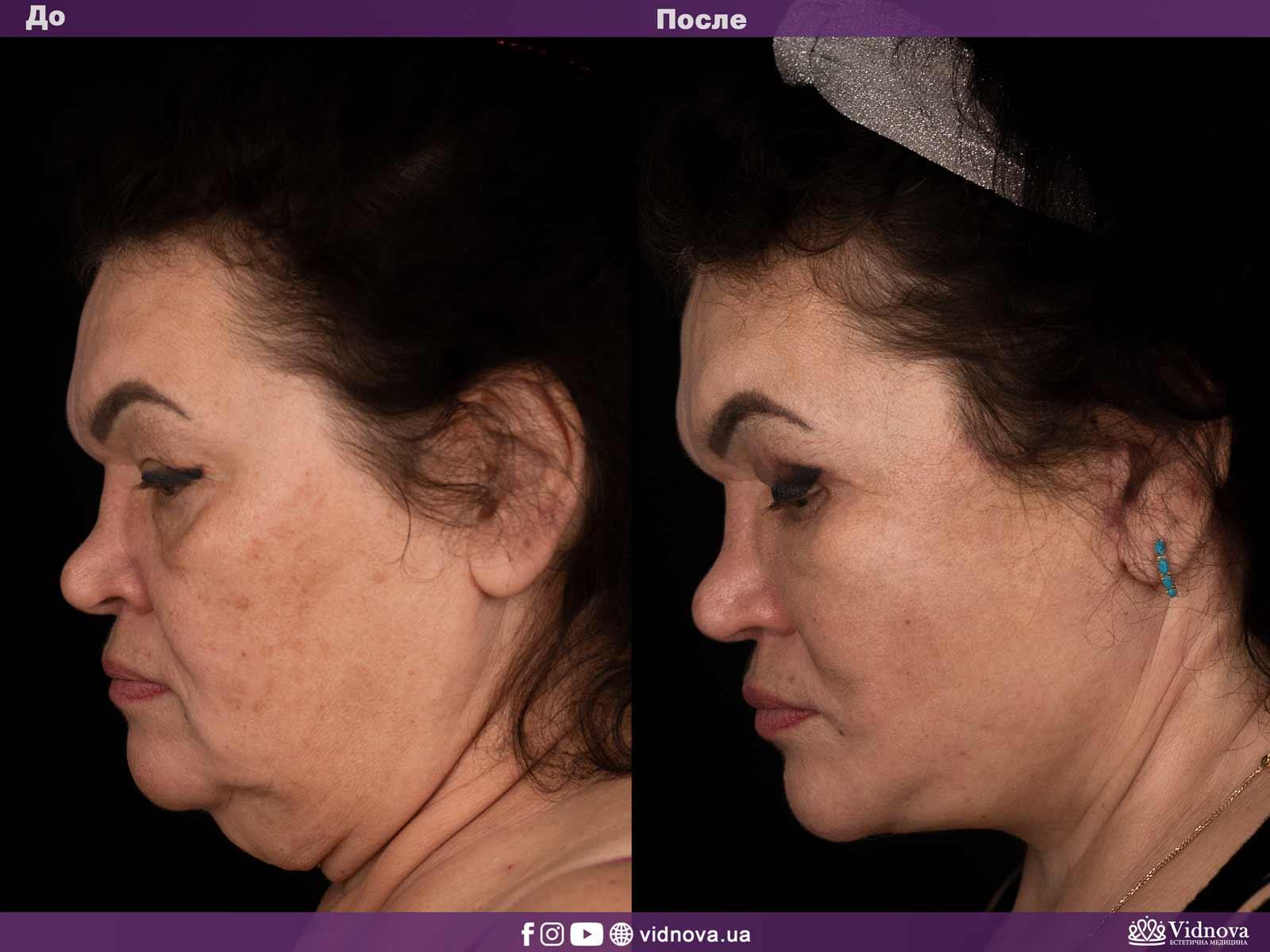 Подтяжка лица и шеи: Фото ДО и ПОСЛЕ - Пример №1-4 - Клиника Vidnova