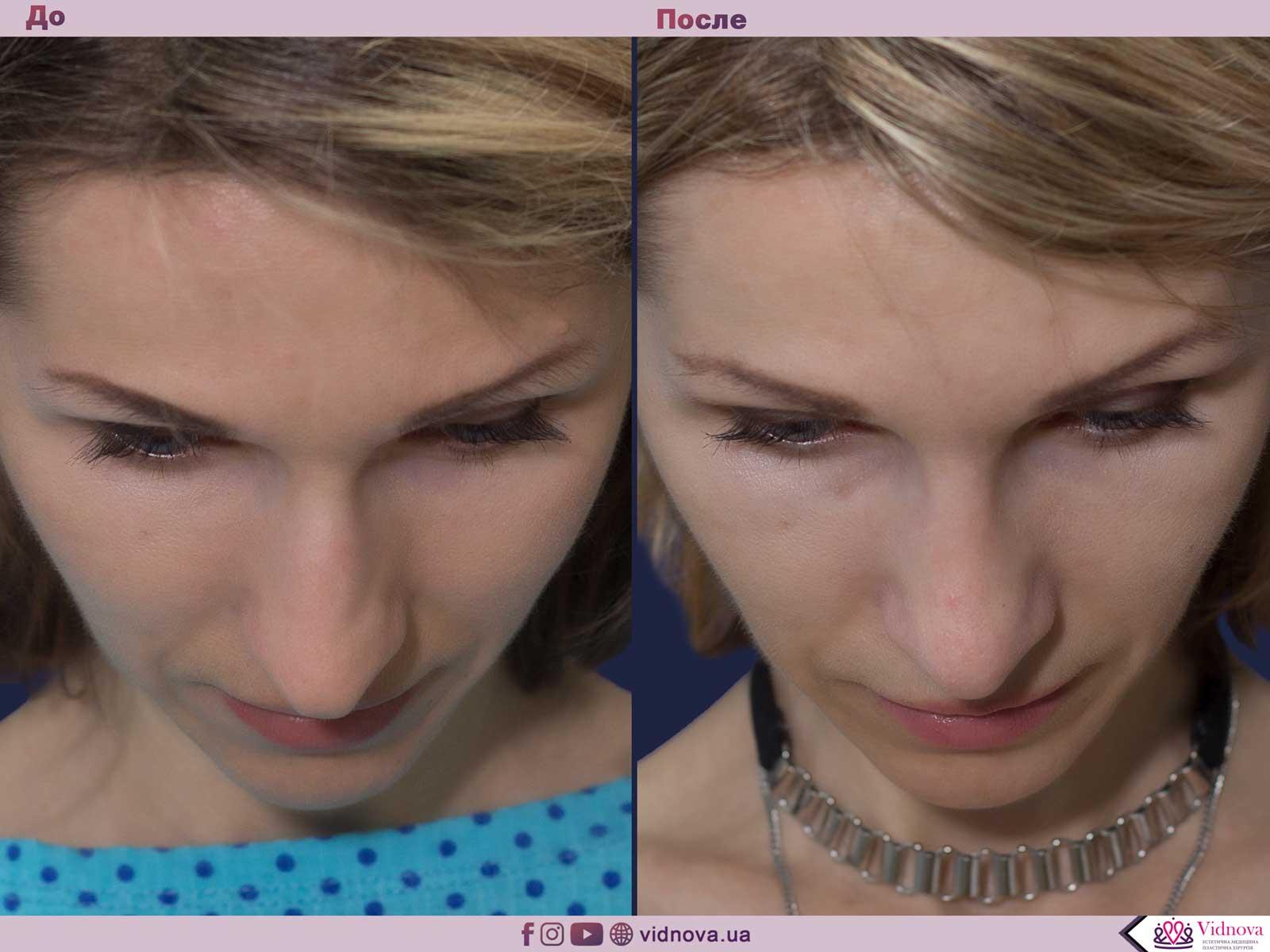 Ринопластика: Фото ДО и ПОСЛЕ - Пример №8-5 - Клиника Vidnova