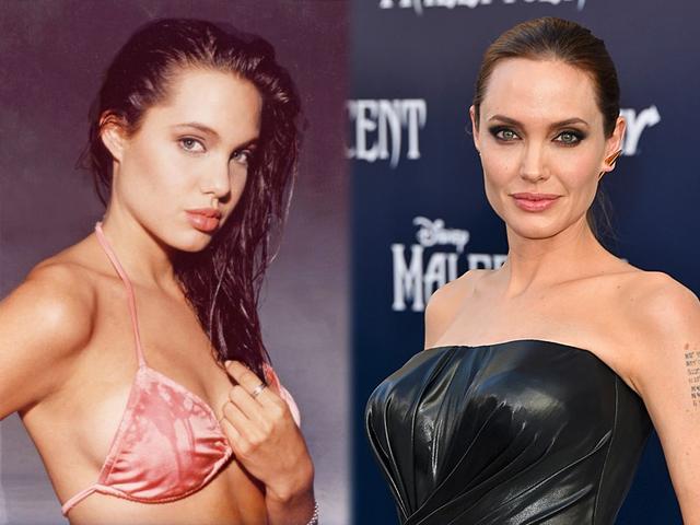 Селебрити до и после пластических операций 8 1 - клиника VIdnova