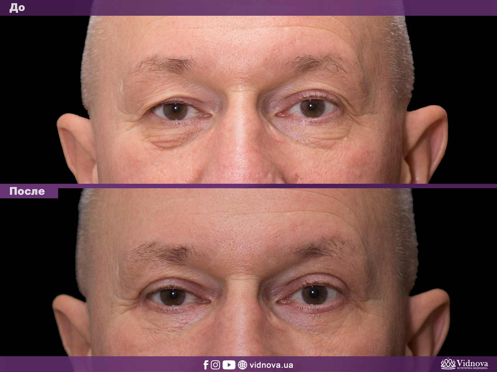 Блефаропластика: Фото До и После - Пример №35-1 - Клиника Vidnova