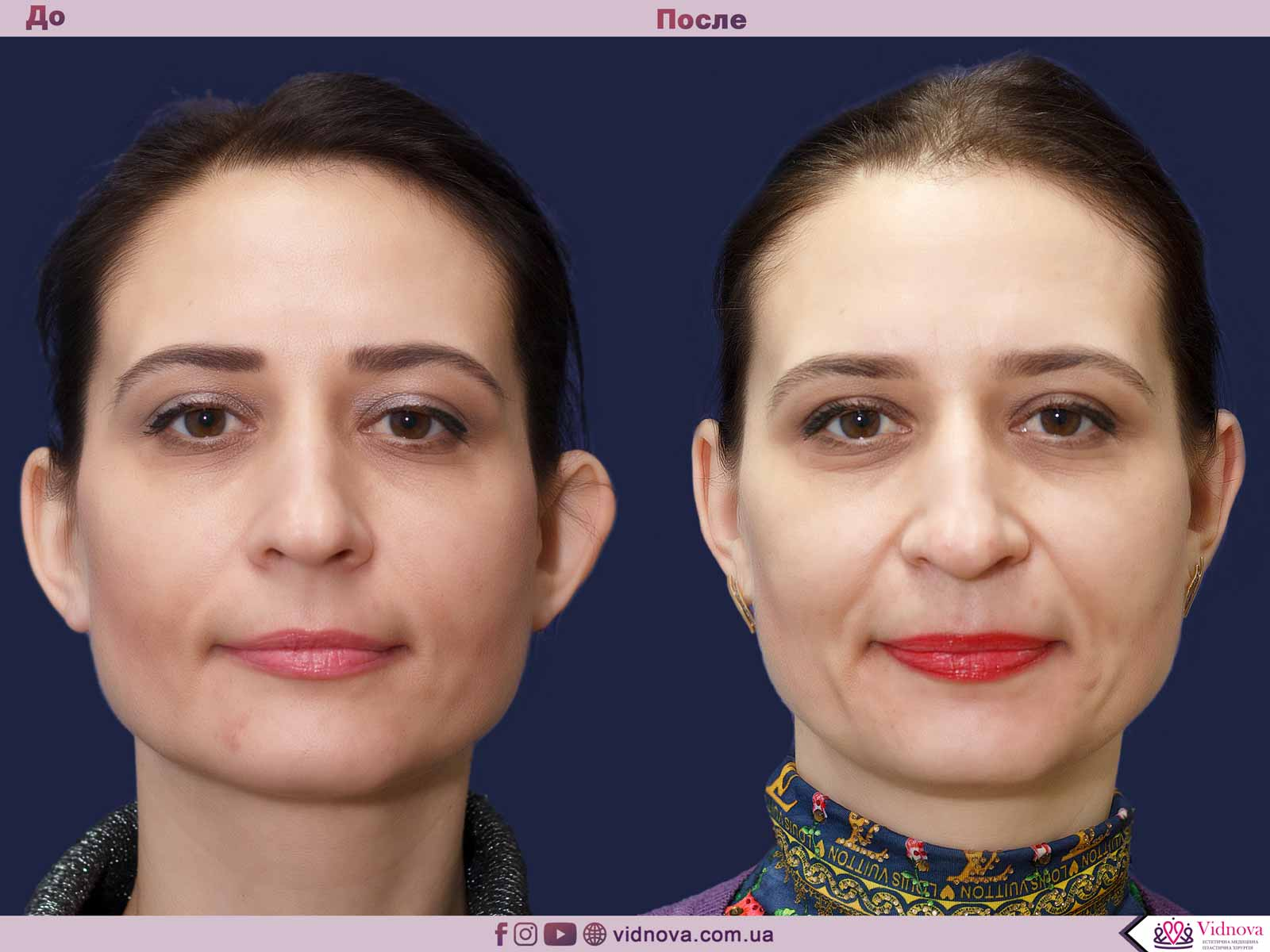 Отопластика: Фото До и После - Пример №9-1 - Клиника Vidnova