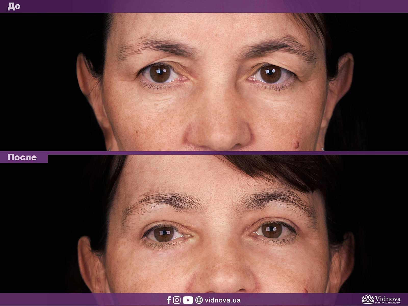 Блефаропластика: Фото До и После - Пример №9-1 - Клиника Vidnova