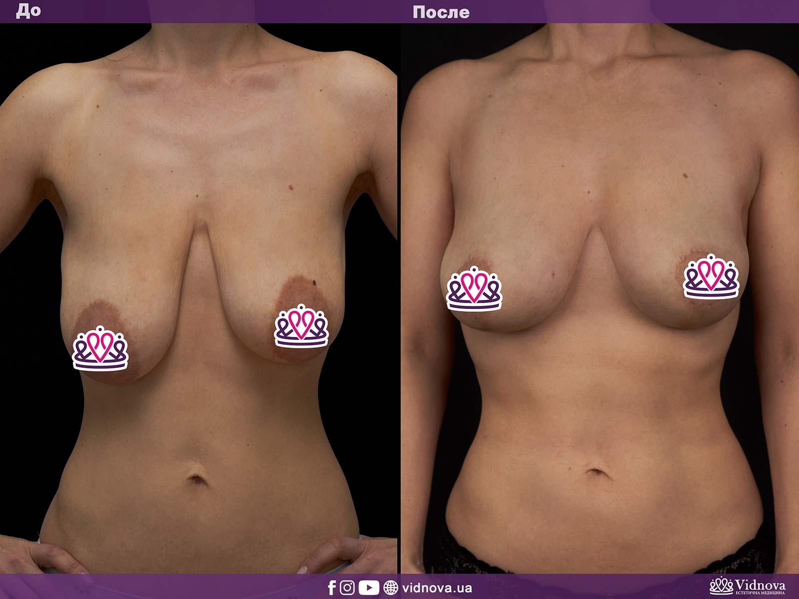 Подтяжка груди: Фото ДО и ПОСЛЕ - Пример №8-1 - Клиника Vidnova