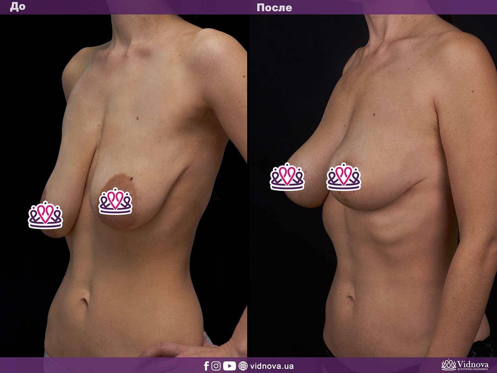 Подтяжка груди: Фото ДО и ПОСЛЕ - Пример №8-2 - Клиника Vidnova